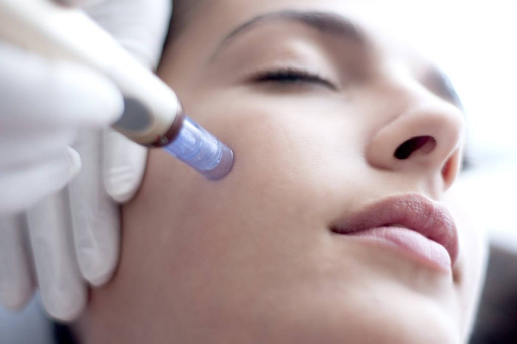 Young woman getting a microneedling facial